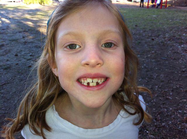 Dylans-teeth